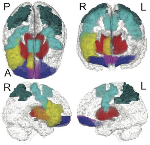 Brain-scans-120429