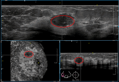 Ultrasound_example